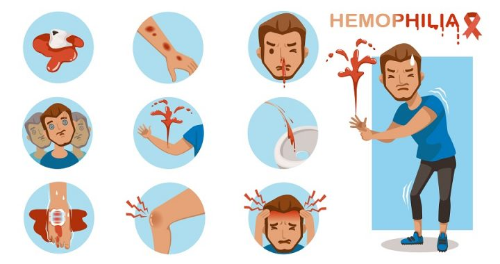 6.1% Global CAGR for Hemophilia Treatment Market to achieve US$ 20,507.92 Mn by 2027