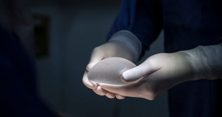 5.2% Global CAGR for Breast Implants Market to achieve US$ 2,278.40 Mn by 2027