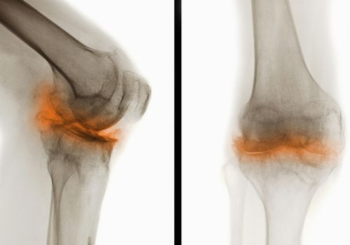 Cartilage Degeneration Market: Studying Innovation of New Techniques by 2027